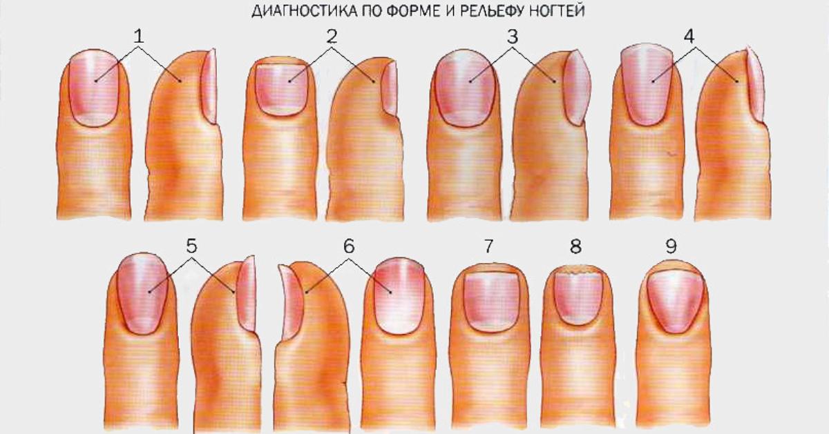 Аюрведа диагностика по ногтям